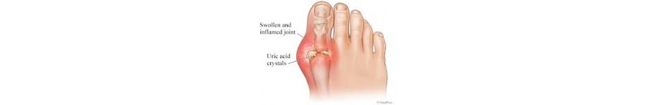 Gout - gút